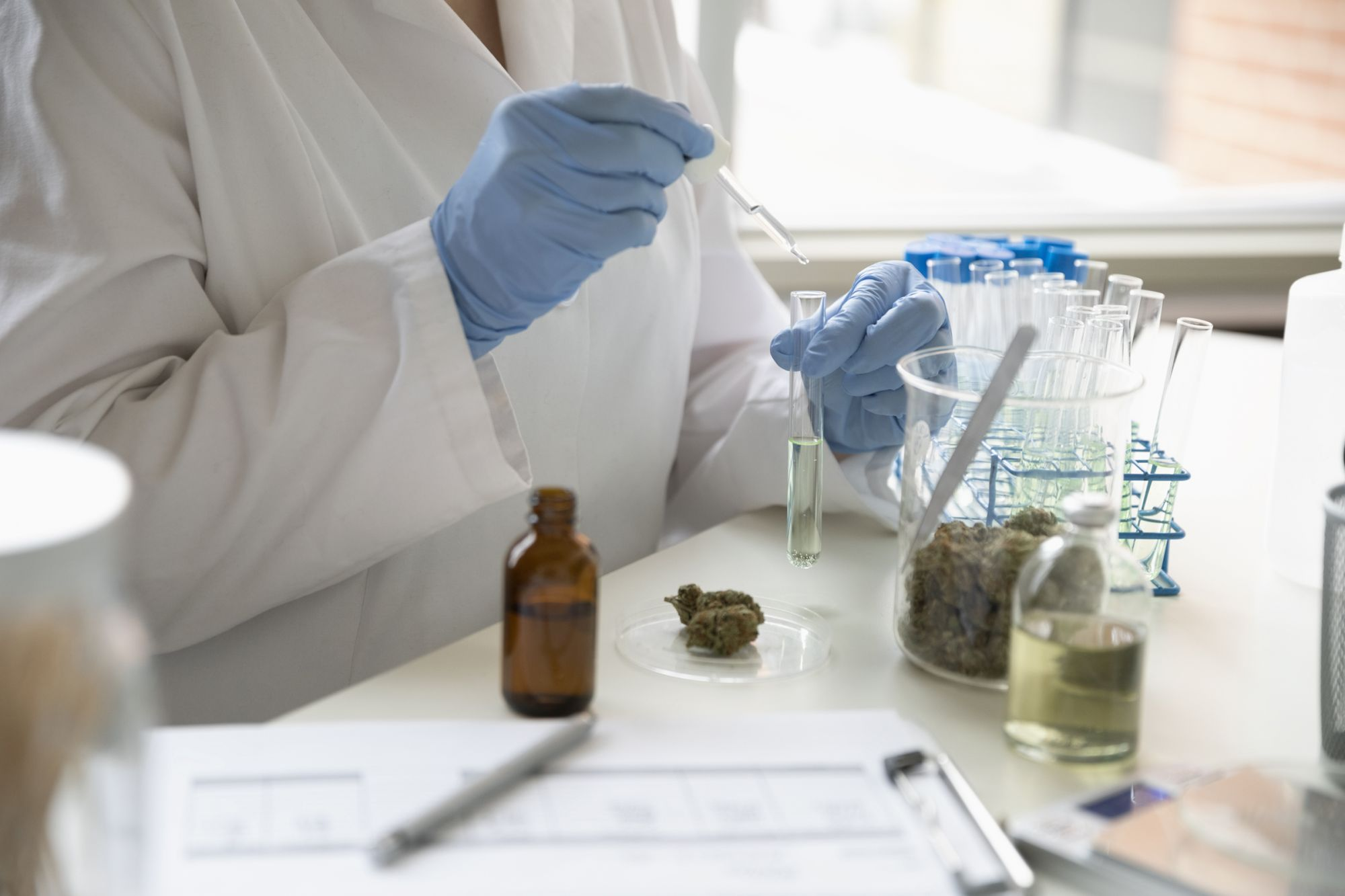 How CBD Could Be Used to Prevent Alzheimer's Disease